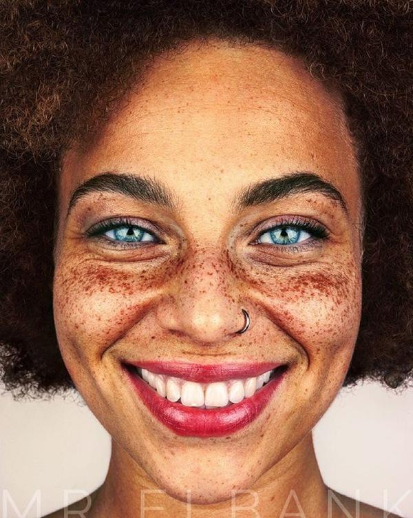 Ben Jij Blij Met Je Sproeten Beautyblog Proud2bme